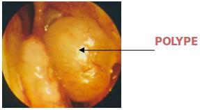 ethmoidectomie-1
