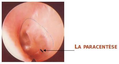 paracentese-1