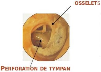 tympanoplastie-1